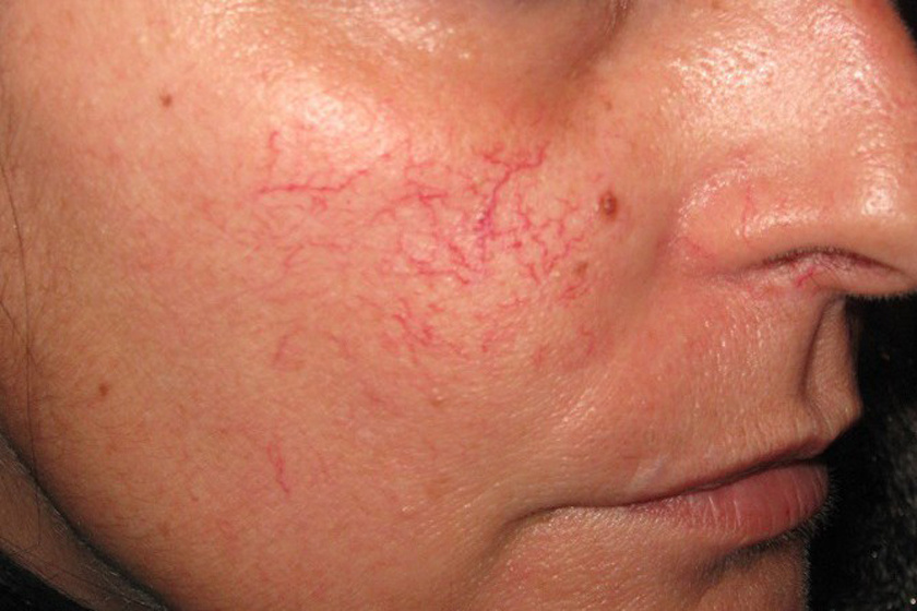 szárított vörös folt az arcon)