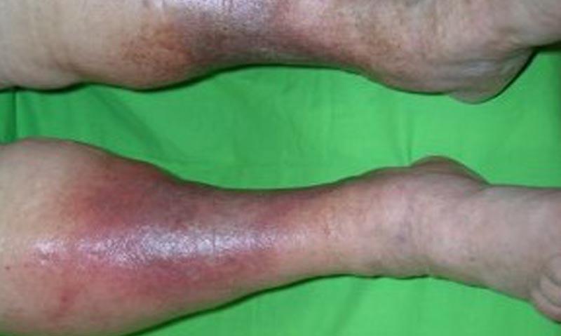 vörös foltok a lábakon visszér, mint kezelni népi gyógymód pikkelysömörre szódával