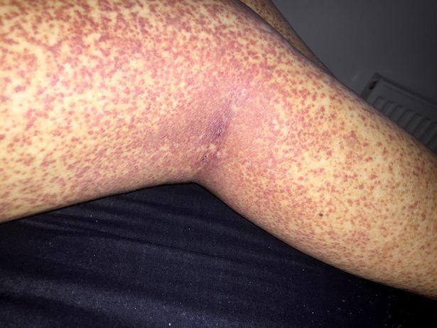 a lábán alul piros foltok