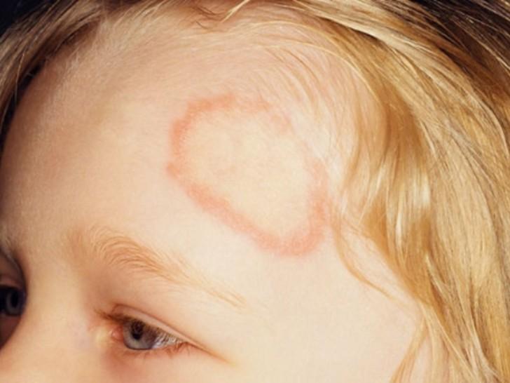 hogyan lehet eltávolítani a foltokat a zuzmó planusból vörös foltok az arcon a melegben