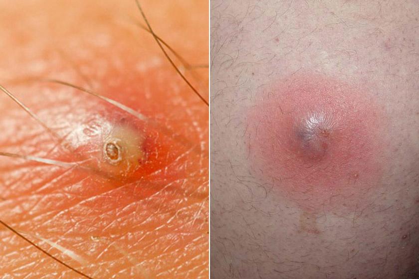 Piros foltok az orron - Dystonia November