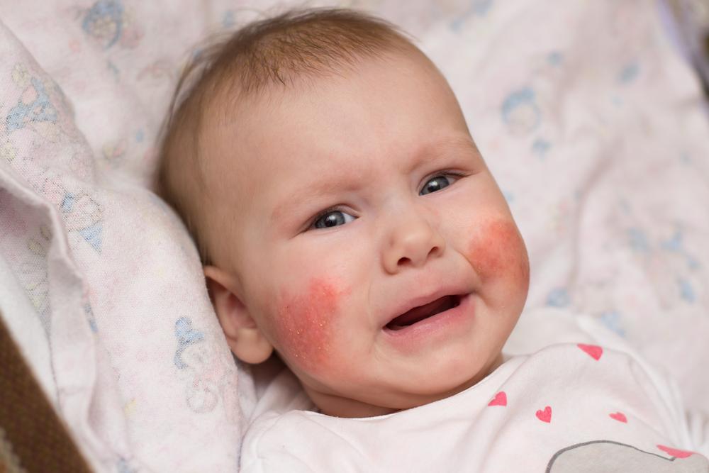 az egész fejét vörös foltok és viszketések borítják)
