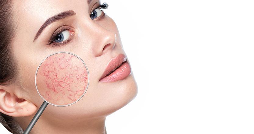 az orr közelében lévő arcon vörös foltok nőnek egyre jobban