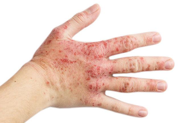 kezek vörös foltokkal és repedésekkel