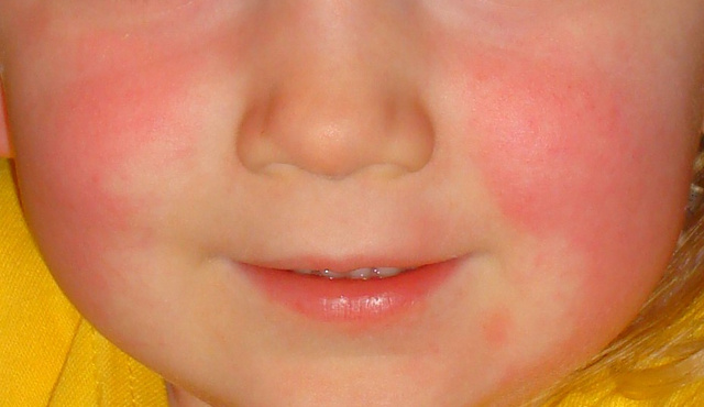 Vörös foltok a szem alatti bőrön mi ez. Piros foltok a szem alatt - Szemhéjgyulladás