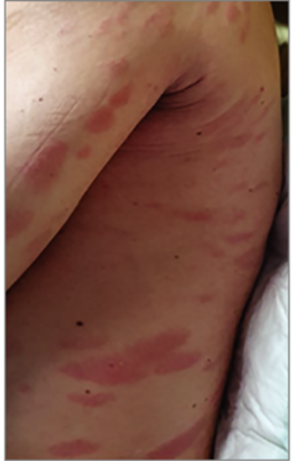 vörös foltok jelentek meg a bőrön a nap után