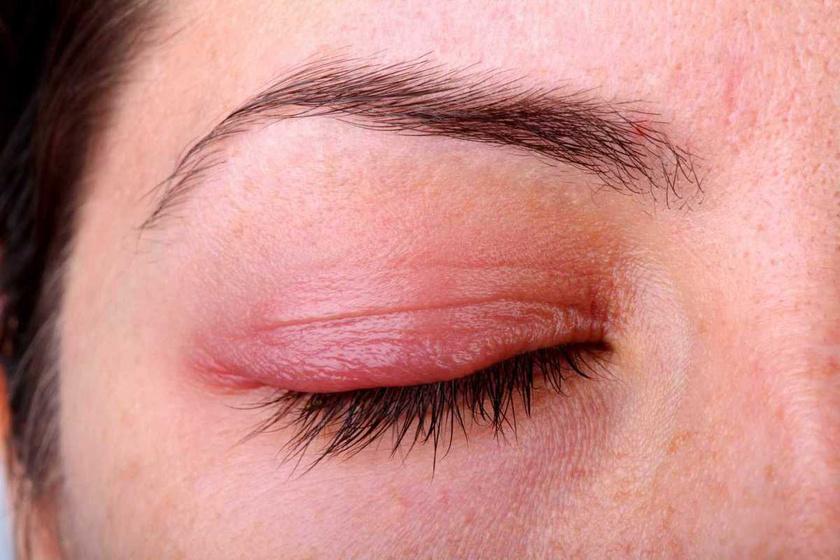 vörös folt a szem alatt és viszket milyen kenőcs a pikkelysömör kezelésére az arcon