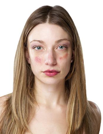 az arcon vörös folt hámlik le egy felnőttnél)