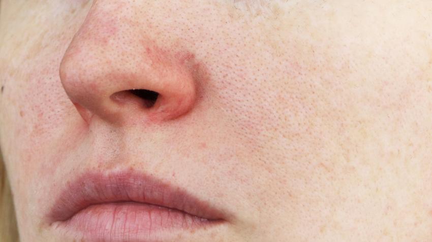kenőcsök pikkelysömörre és dermatitisre pikkelysömör metotrexát kezelési rend