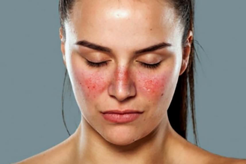 az orr közelében lévő férfiaknál az arc vörös foltjai lehámlanak)