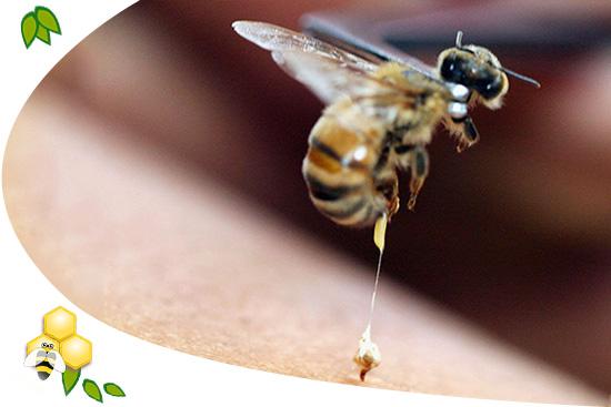 méhméreg kezelés pikkelysömörhöz)
