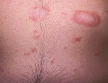 Férgek rózsaszín zuzmó, Piros foltok a bőrön A kerekférgek fertőzőek vagy sem