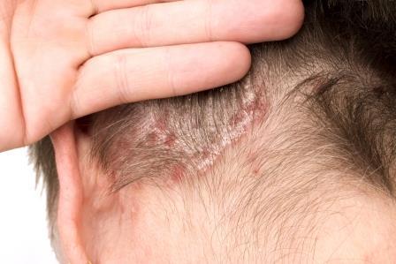 bőrgyógyász kezeli a pikkelysömör)