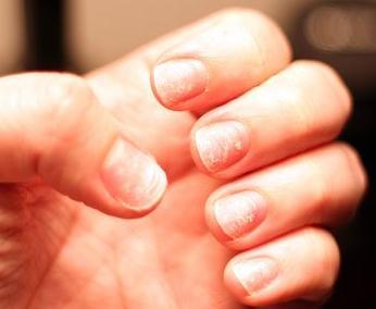 a kéz bőrén vörös folt hámlik