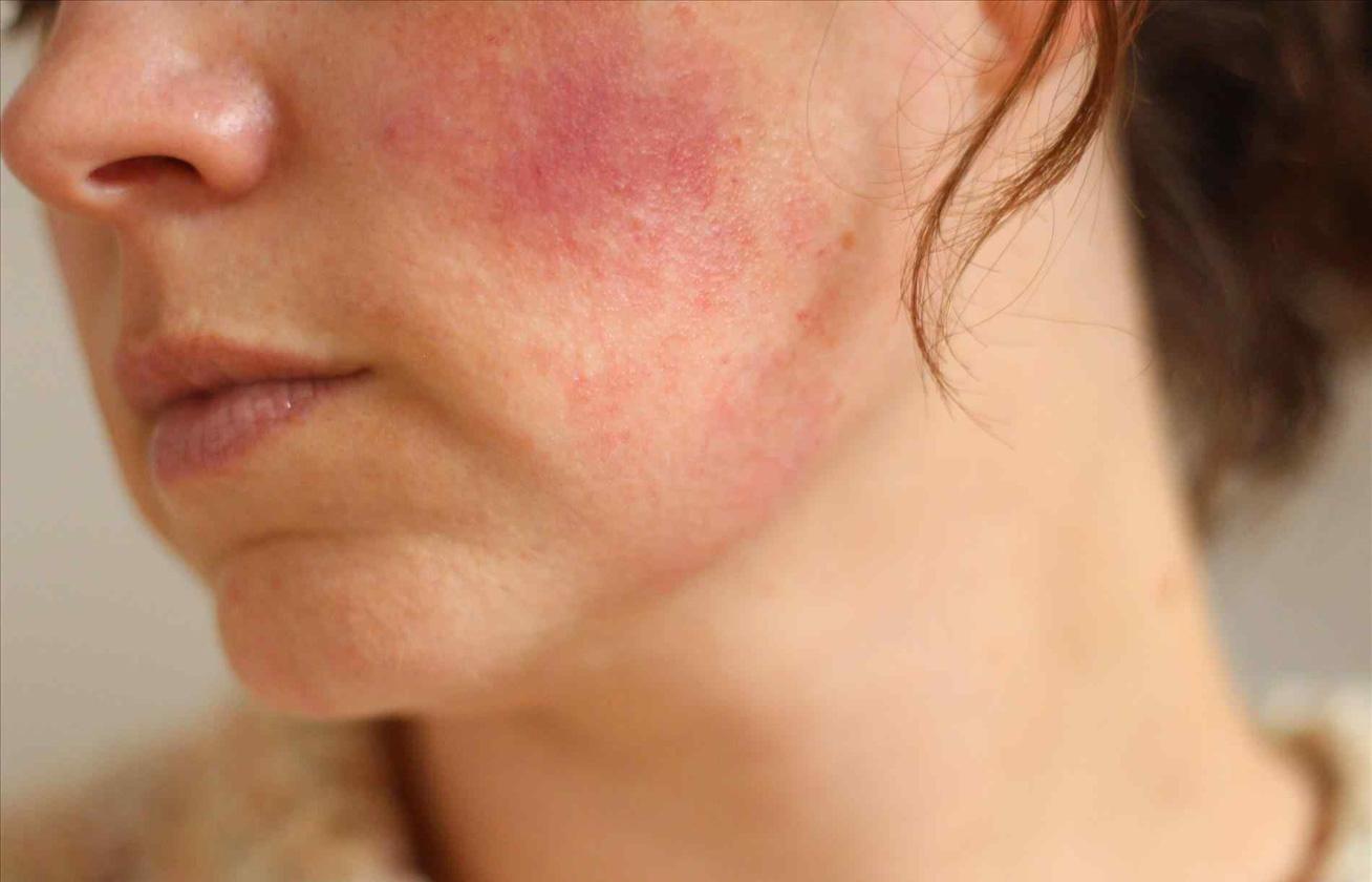 vörös foltok az arcon tünetek fotó selejt pikkelysömör gyógyszer
