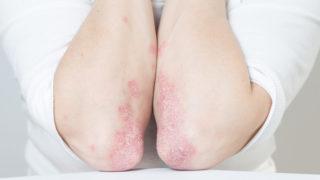 atópiás bőrgyulladás kezelésére bulgáriában - A legjobb psoriasis krém