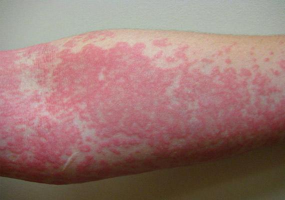 bőrkiütés vörös foltok formájában az idegeken