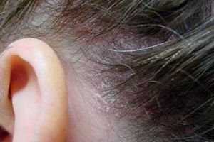 fejbőr psoriasis alternatív kezelés