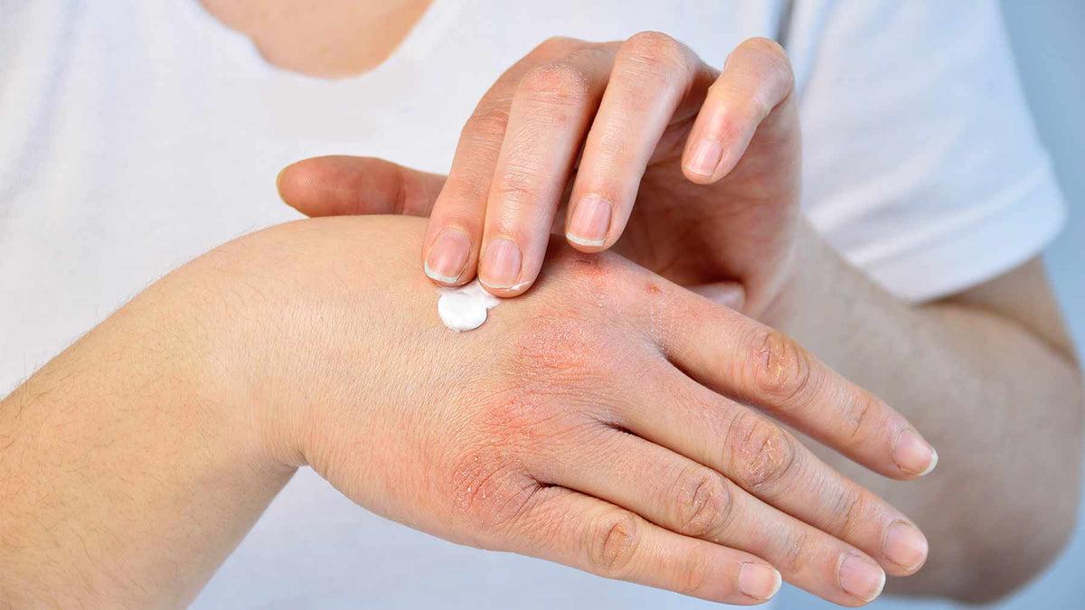 hogyan lehet gyógyítani a pikkelysömör bőrét)