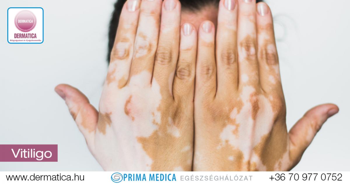Vitiligo pikkelysömör kezelése