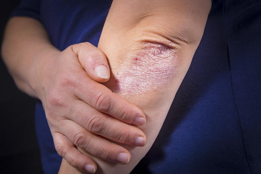 A solidol együttes kezelése. Pikkelyes, viszkető bőr könyök és térd