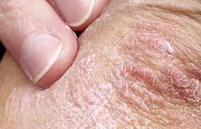 tenyér és talp psoriasis vulgaris kezelése)