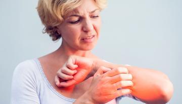 kitörések a bőrön vörös foltok formájában viszketéssel hogyan kell kezelni