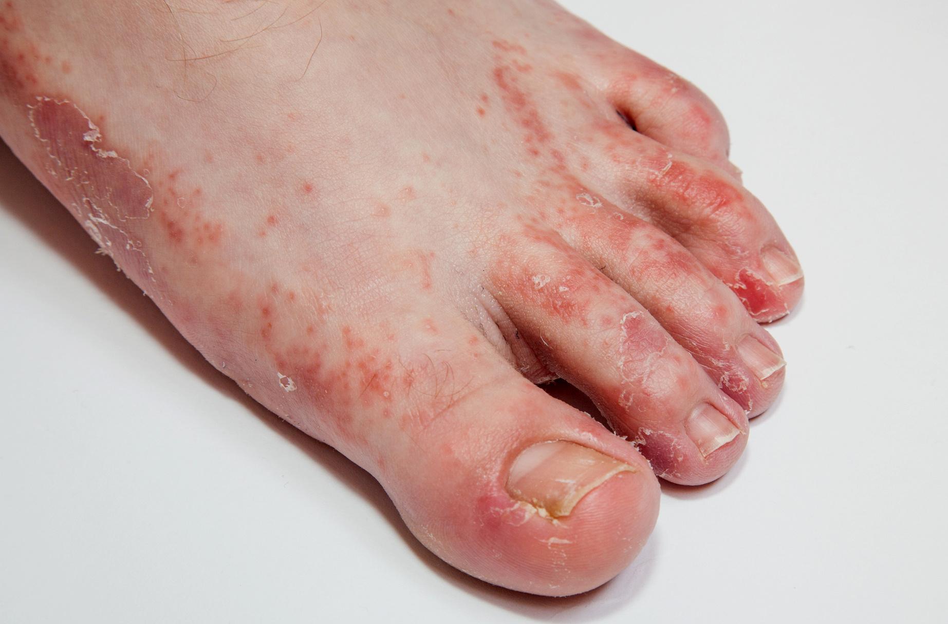 hogyan kell kezelni a lábán lévő vörös foltokat a gombától)