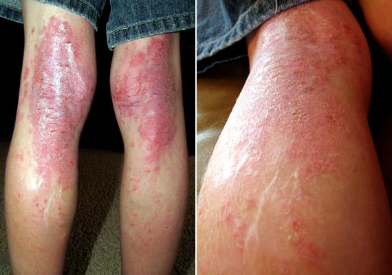 az egész fejét vörös foltok és viszketések borítják miért jelennek meg piros foltok a lábak között