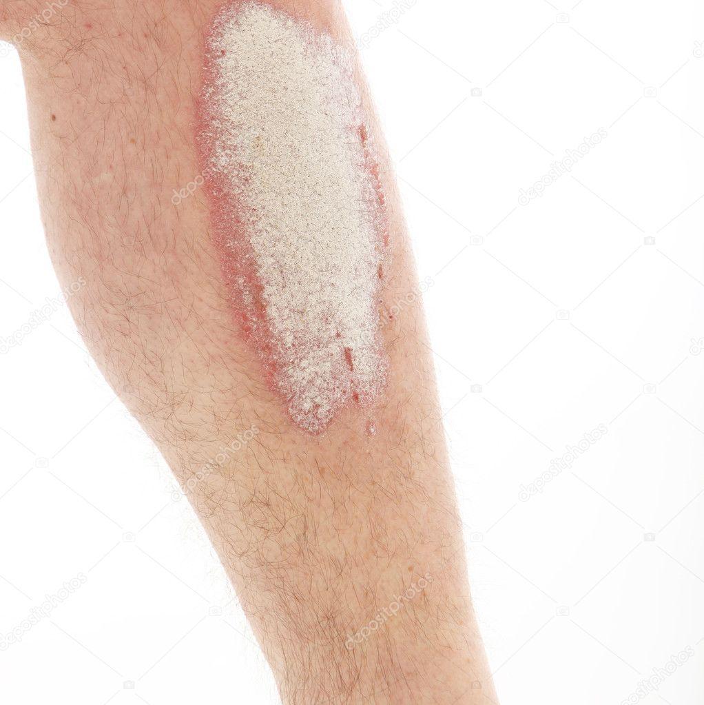 kenőcs pikkelysömörhöz a bőr árain