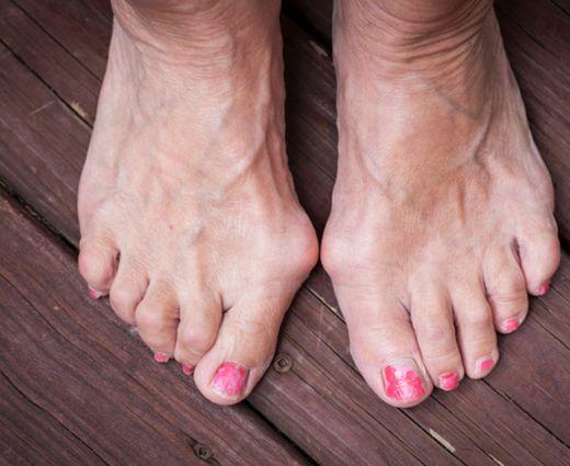 hogyan kell kezelni a lábujjak pikkelysömörét)