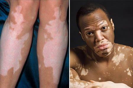 leégés után vörös foltok jelentek meg a lábakon vörös kapilláris folt a bőrön