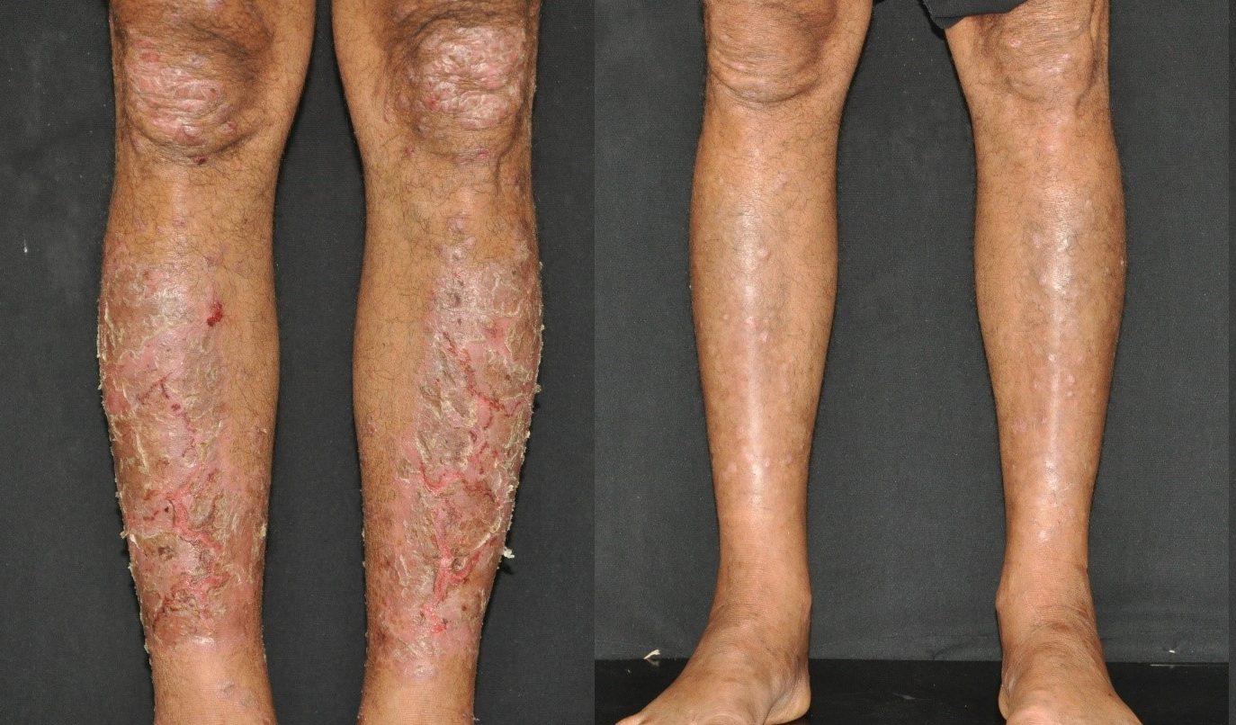 miért jelennek meg piros foltok a lábak között arthritis psoriasis kezelése