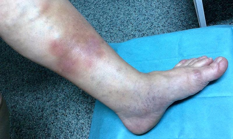 piros folt a láb bokáján)
