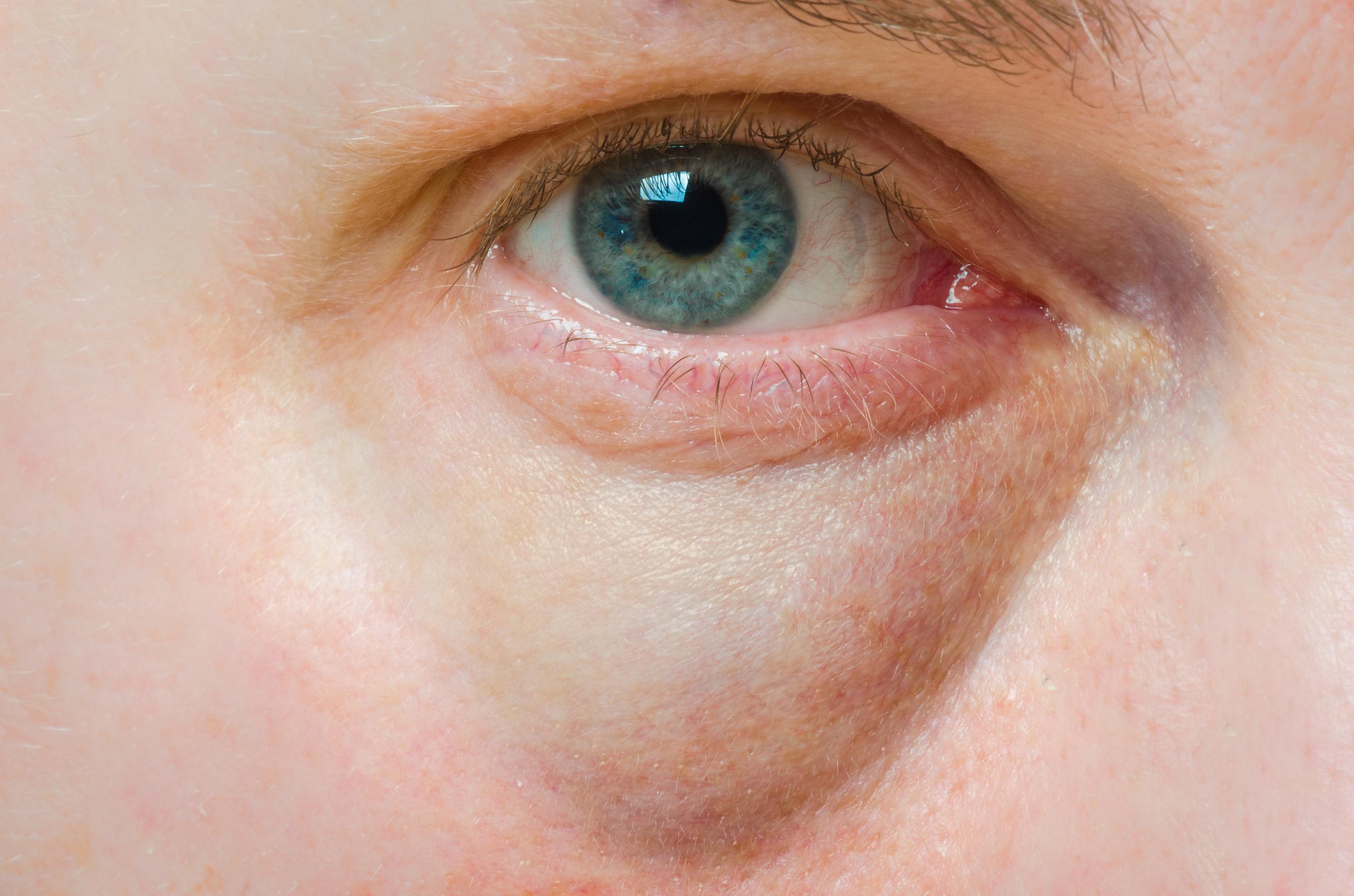 vörös foltok viszketnek a szem alatt