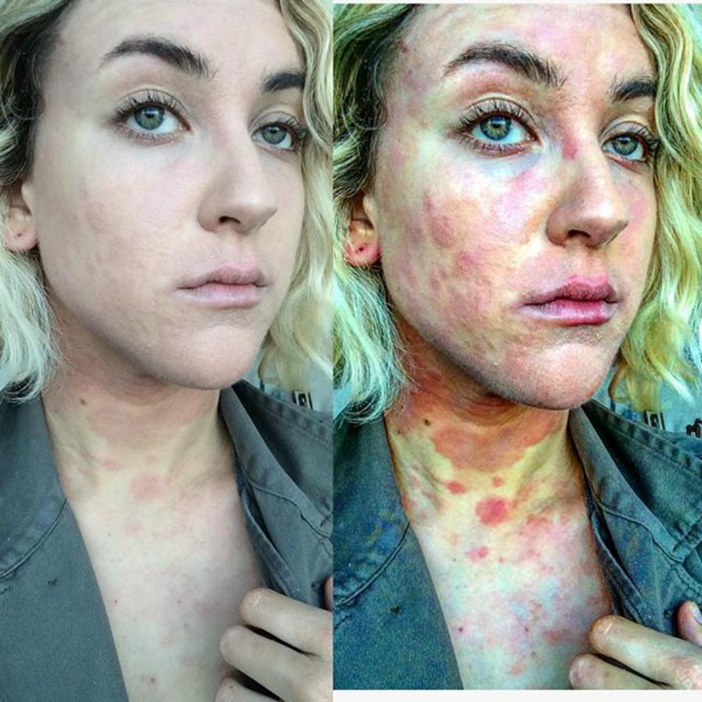 egsz test pikkelysömör kezelse hogyan lehet az arcán vörös foltot festeni
