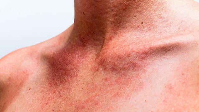 vörös foltok jelentek meg a nyakon és az arcon)