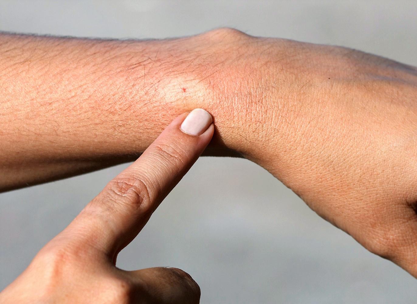 Méh és darázscsípés: veszélytelen vagy halálos