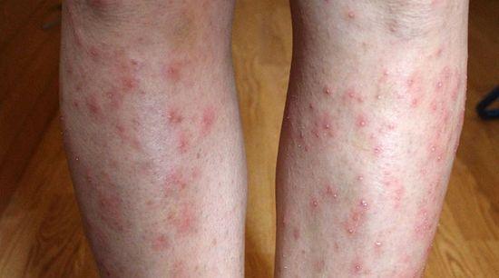a lábakat vörös foltok és viszketés borítják)
