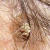 hogyan kell kezelni a vörös foltokat a fejbőrön milyen gygynvnyt kezelnek pikkelysömörrel