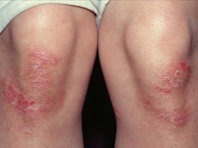 hogyan lehet gyógyítani a guttate pikkelysömörét