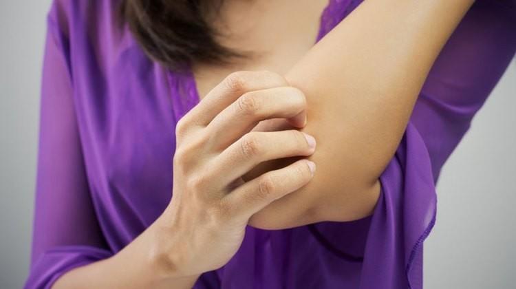 hogyan lehet gyógyítani a könyökeket a pikkelysömörtől)