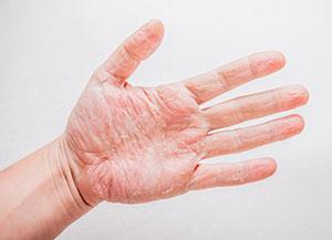 hogyan lehet gyógyítani a tenyér pikkelysömörét?