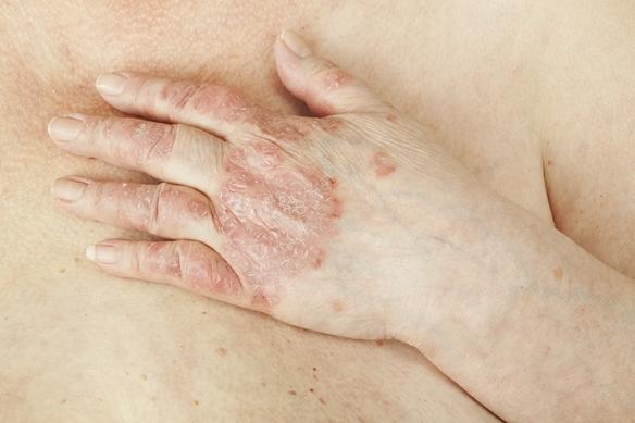 hogyan lehet pikkelysömör kezelésére rohadt ujjal