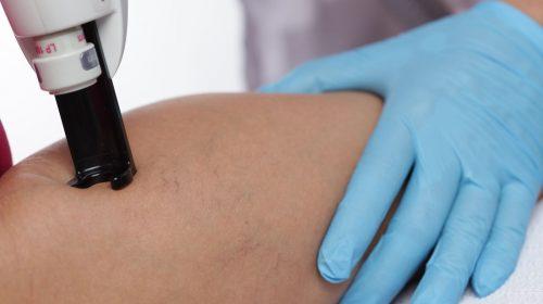 Klinikai irányelvek a Tsnikvi pikkelysömör kezelésére)
