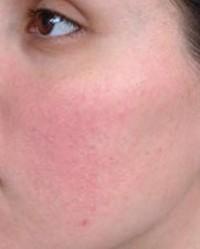 burgonya vörös foltokból az arcon