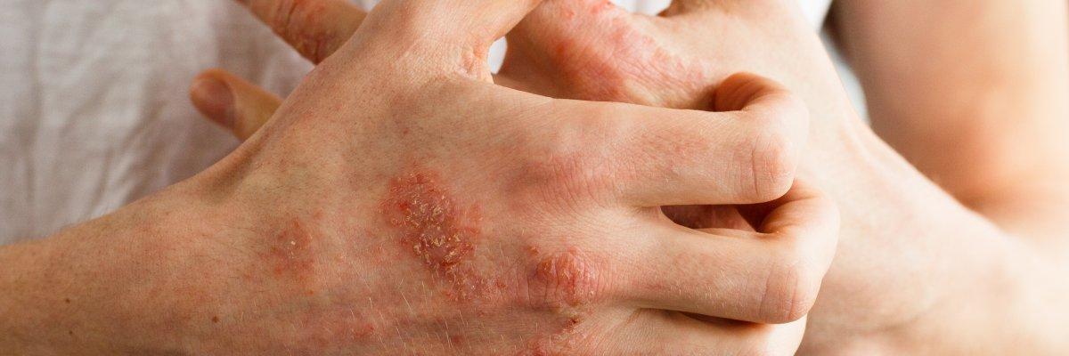 milyen gygynvnyt kezelnek pikkelysömörrel stressz után vörös foltok jelentek meg az arcon
