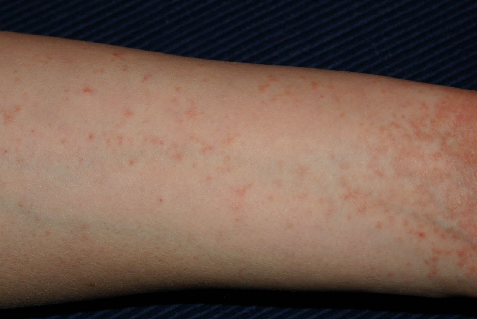 mit kezdjen a lábakon lévő piros foltokkal vörös korfoltok az arcon