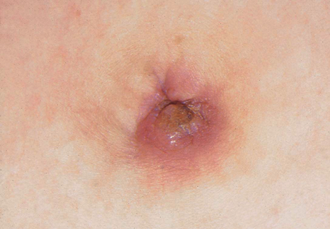 A gyomorban egy nagy vörös folt viszket - Belgyógyászati diagnosztika | Digitális Tankönyvtár