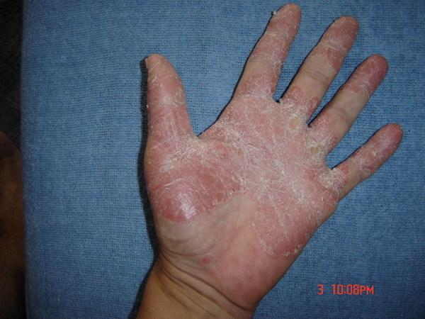 népi gyógymódok pikkelysömörre az ujjakon